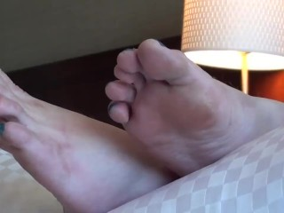 Gross, disregarded, dry, sloppy, calloused dame soles